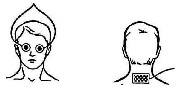Глазнично-затылочная методика по Бургиньону