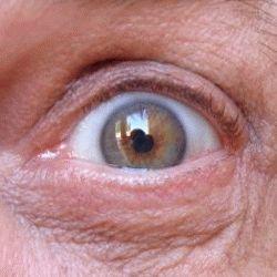 Гимнастика при глаукоме