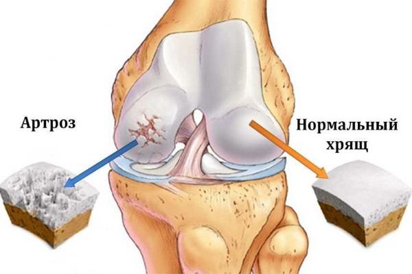Хрящ в норме и при артрозе коленного сустава