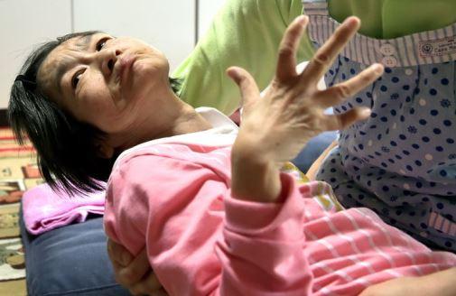 женщина с болезнью Минамата