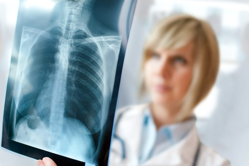 снимок рентгена