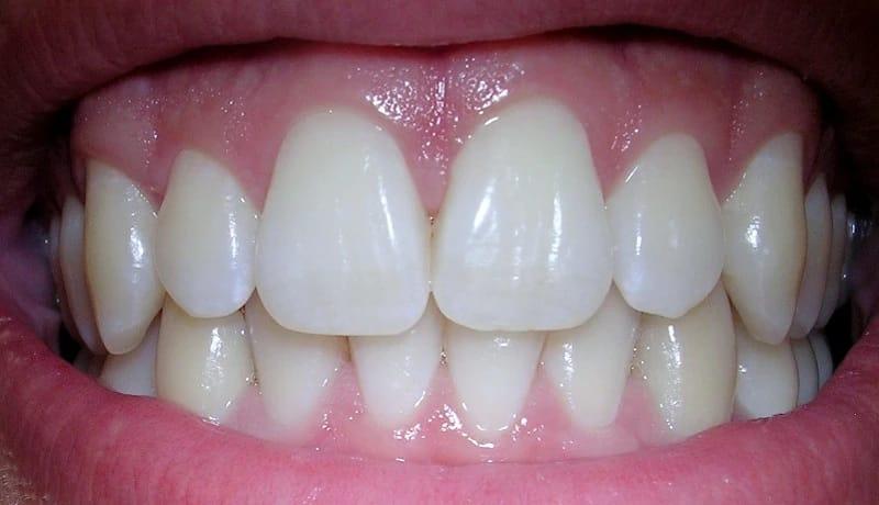 От них зависит здоровье зубов что такое десны, и как за ними правильно ухаживать