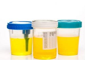 эритроциты в моче при беременности