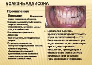 болезнь аддисона