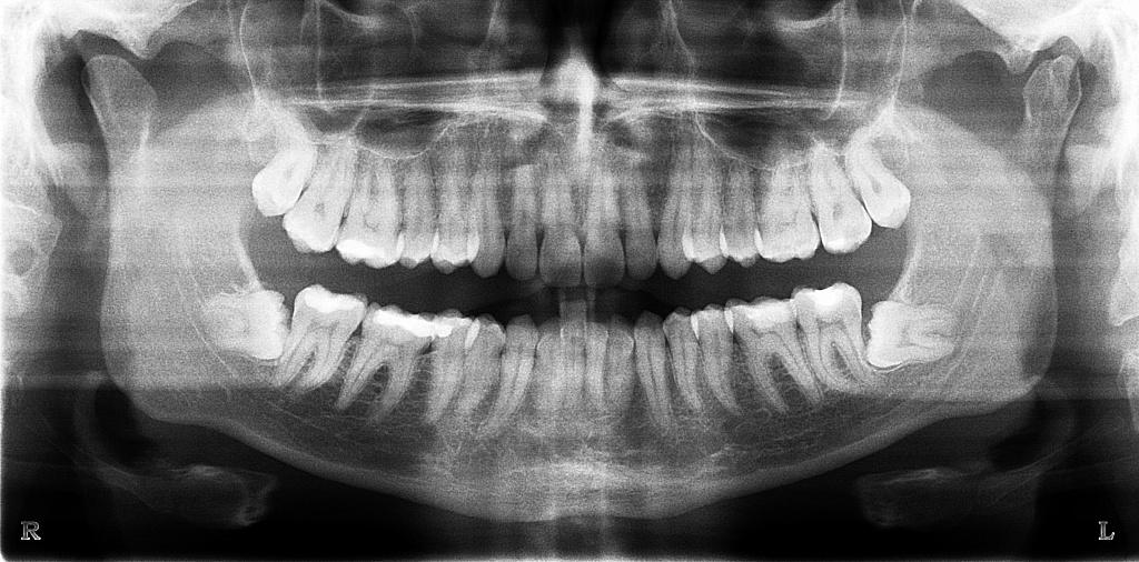 Обследования и протезирование можно ли делать МРТ с имплантами зубов. Как правильно подготовиться к операции по имплантации