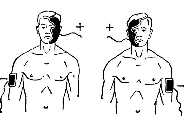 Гальванизация области лица, маска Бергонье