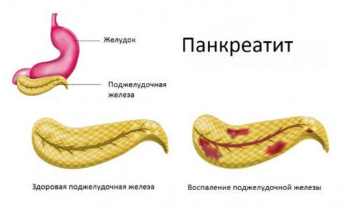 Панкреатит - это опасное воспаление поджелудочной железы. Даже при наступлении ремиссии и угасании симптомов острого периода болезни последствия панкреатита человек будет ощущать всю оставшуюся жизнь