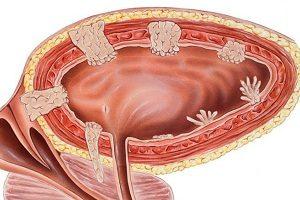 лечение рака мочевого пузыря у мужчин