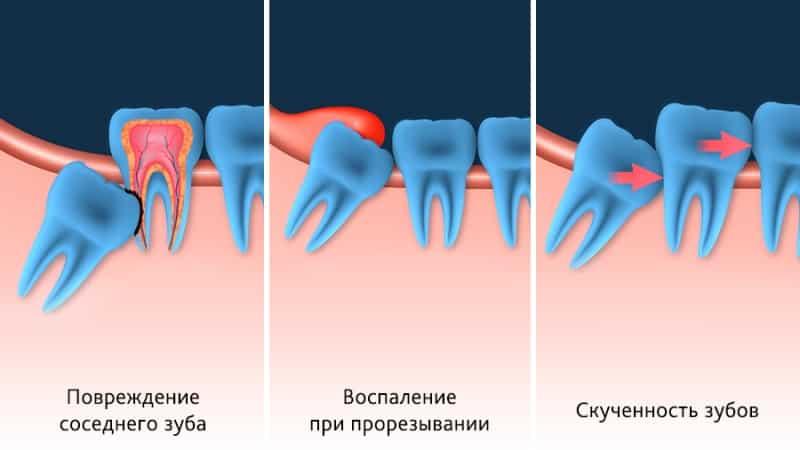 Что делать, если зуб мудрости растет в щеку или в бок. Как снизить риск развития нежелательных осложнений