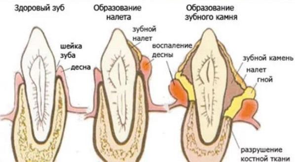 Как проходит процедура удаления зубного камня ультразвуком. Какой аппарат лишен минусов бесконтактного влияния