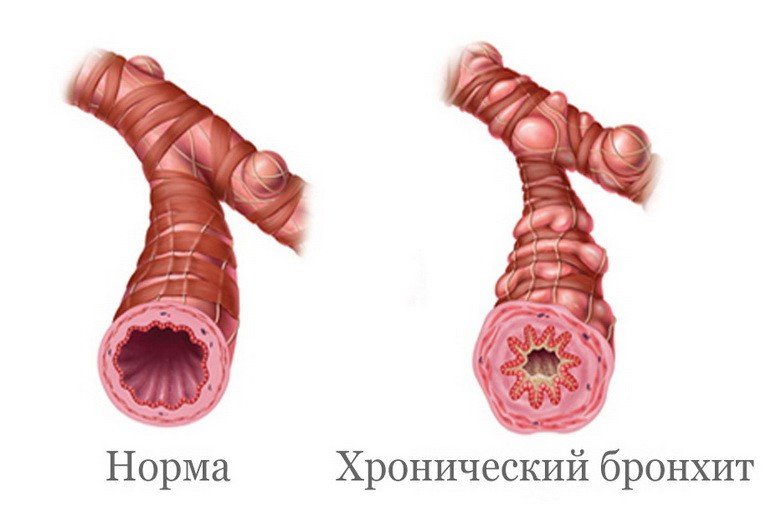 Какие антибиотики принимать при бронхите