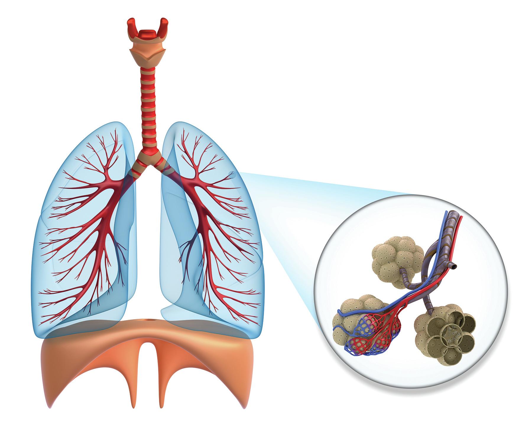 Что такое аллергический альвеолит